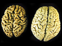 старіння мозку